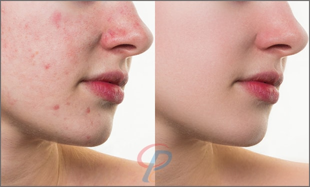 Acne and Scars Retouchup